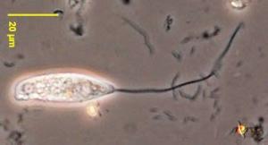 Peranema trichophorum (Image courtesy of Encyclopedia of Life)