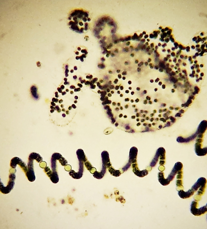 ANABAENA AND MICROCYSTIS