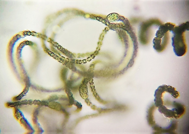 Nostoc, stack of two images. Note smaller cell size and thinner filaments compared to Anabaena on right.