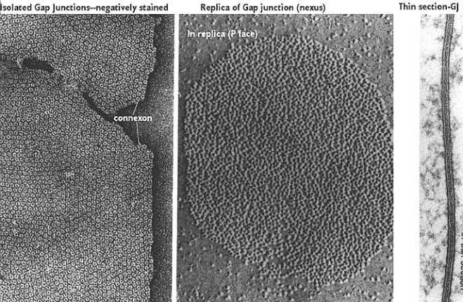 Gap Junction Structure, Freeze-fracture and TEM (Courtesy Childs)