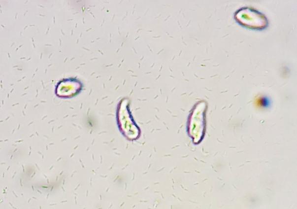 swarm-bacteria-213655