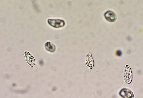 swarm-flagellates-213758